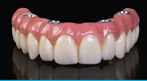 All-On-4 Denture